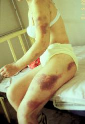 Bible Princess: Tamar. Injuries arising from rape of a young woman