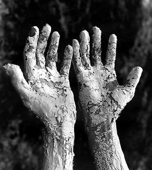 Hands with skin whitened with leprosy