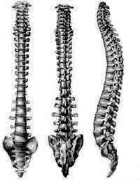 The spine of a person with Spondylolisthesis