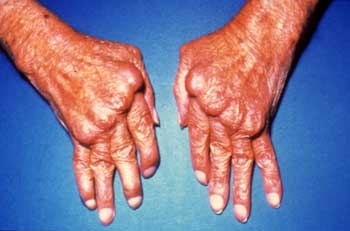 A woman's arthritic hands