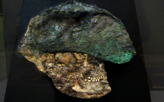 Flattened copper helmet and skull found in the Royal Tomb at Ur